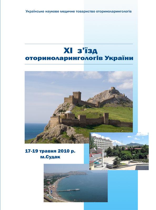 Генуэ301зская кре301пость - крепость в городе судаке (крым, украина), построенная генуэзцами в период с 1371 по 1469 годы